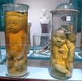 Istituto di anatomia patologica, museo, campioni 14 feti malformati.JPG