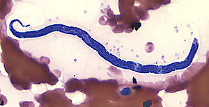 Loa loa - Loa loa microfilaria in thin blood smear (Giemsa stain)