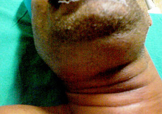 Ludwigs angina human disease