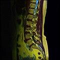 Lumbosacral MRI case 12 11.jpg