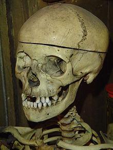 Head Of Ulna