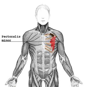 Pectoralis minor muscle - Pectoralis minor (shown in red).