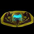 Pelvic MRI 06 10.jpg