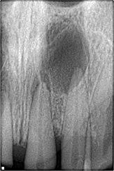abcès dentaire parodontal