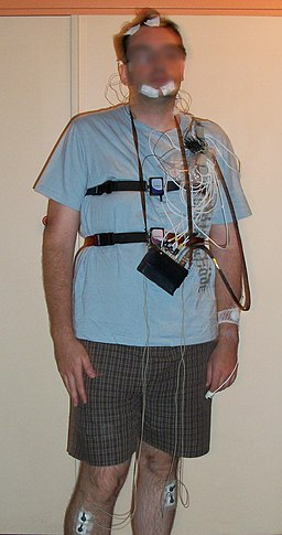 Polysmonograpy equipped patient