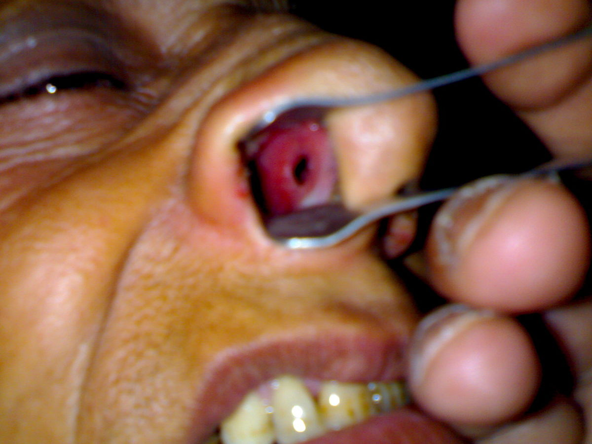 Nasal septum perforation - Wikipedia of Icd 10 for cracked lip