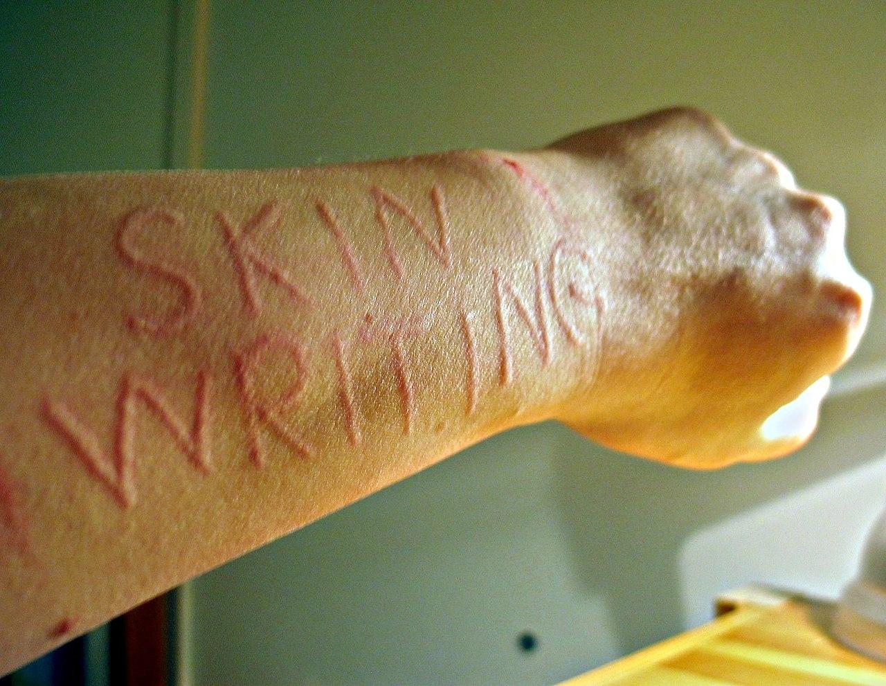 File:Skin writing01 jpg - Wikimedia Commons