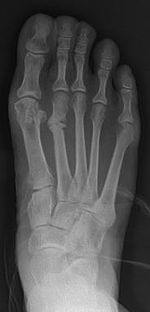 Stress fracture of the second metatarsal bone1.jpg