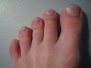 lábujjak duzzadt lábak a lábak ízületeiben