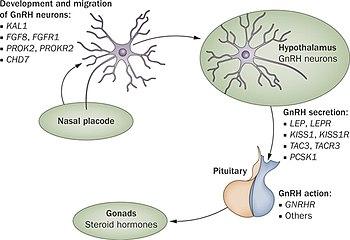 Kallmann Syndrome Wikipedia