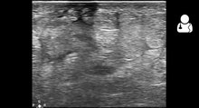File:UOTW 66 - Ultrasound of the Week 1.webm