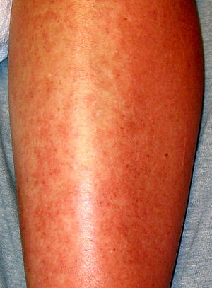 Sulfonamide (medicine) - Allergic urticaria on the skin induced by an antibiotic