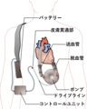 Ventricular assist device jp.png