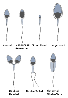 Abnormalsperm.svg