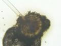 Aspergillus conidiophore 160X.png
