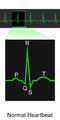 Blausen 0465 Heartbeat EKG.png