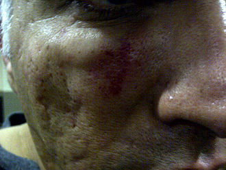 Aftermath of the Bahraini uprising (January–August 2012) - Bruising on Nabeel Rajab's face after the alleged police beating