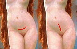 Cesarea histerectomia