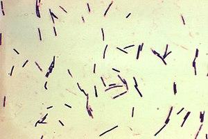 Clostridium perfringens grown in Schaedler's broth using Gram-stain