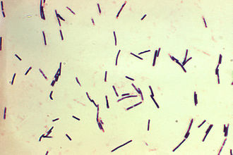 Clostridium perfringens beta toxin - Photomicrograph of Clostridium perfringens.