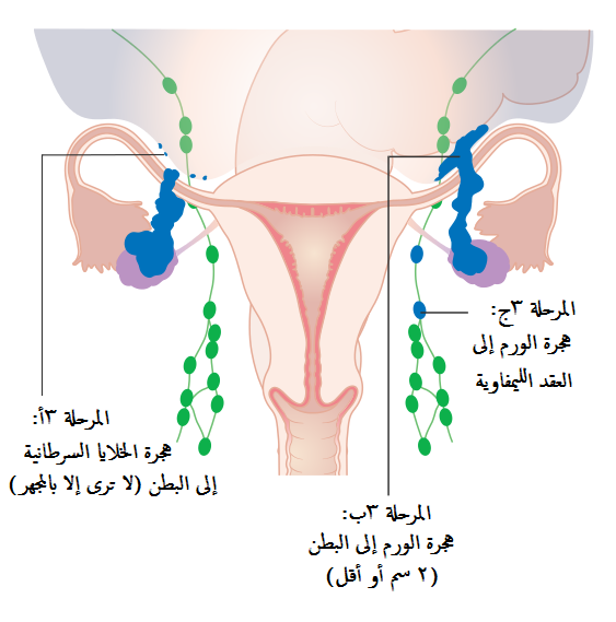 Diagram showing stage 3A to 3C ovarian cancer CRUK 225-ar
