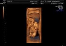 Fil:Fetal movements 3D Ultrasound Dr. Wolfgang Moroder.theora.ogv