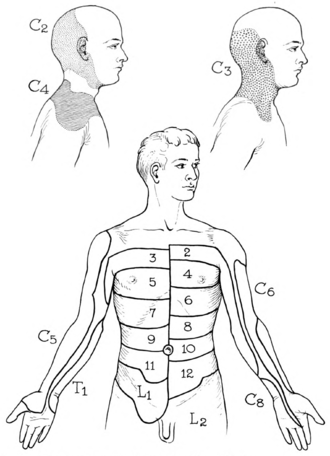 Dermatome (anatomy) - Dermatomes of the Upper Parts of the Body, displaying significant overlapping (Modified, from Fender, after Foerster)