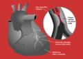 Heart attack diagram.png
