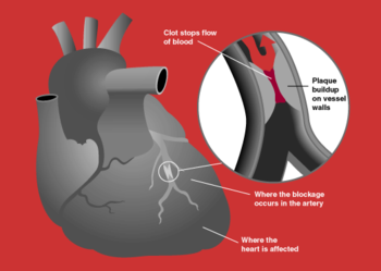 A myocardial infarction occurs when an atherosclerotic plaque slowly builds up in the inner lining of a coronary artery and then suddenly ruptures, totally occluding the artery and preventing blood flow downstream.