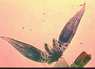 Laboulbeniomycetes - Herpomyces sp. micrograph