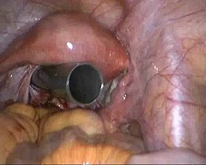 Natural orifice transluminal endoscopic surgery - Endoscopic surgery trocar inserted through the vaginal fornix. The uterus is visible directly above the trocar.