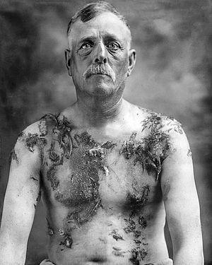 John Meintz, punished during World War I - NARA - 283633 (restored and edited v.2.).jpg