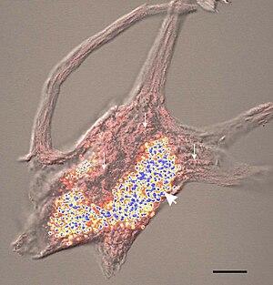 下位運動ニューロン疾患 - meddic