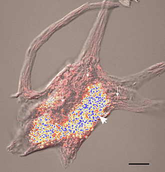 Chromatolysis - An image of an axotomized spinal motor neuron with Nissl bodies and lipofuscin. The pink structures are Nissl bodies and the blue and yellow structures are the lipofuscin granules. In chromatolysis of motor neurons, these pink structures dissolve.