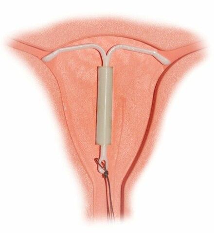 Sitz einer Hormonspirale in der Gebärmutter
