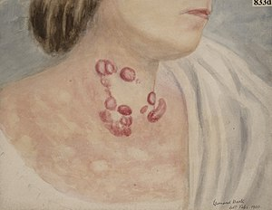 Neck of a woman suffering from mycosis fungoides of the skin Wellcome L0061976.jpg
