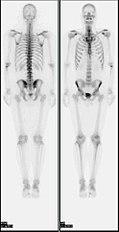 Nl bone scan2.jpg