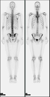 Bone scintigraphy imaging technique used in nuclear medicine