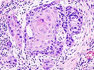 Oral cancer (1) squamous cell carcinoma histopathology.jpg