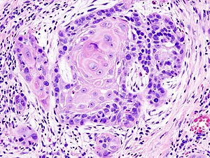 Biopsy of a highly differentiated squamous cel...
