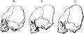 PSM V17 D751 Artificially deformed skulls for fashion.jpg