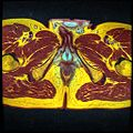 Pelvic MRI T1FSE T2frFSE T2FSfrFSE 24.jpg