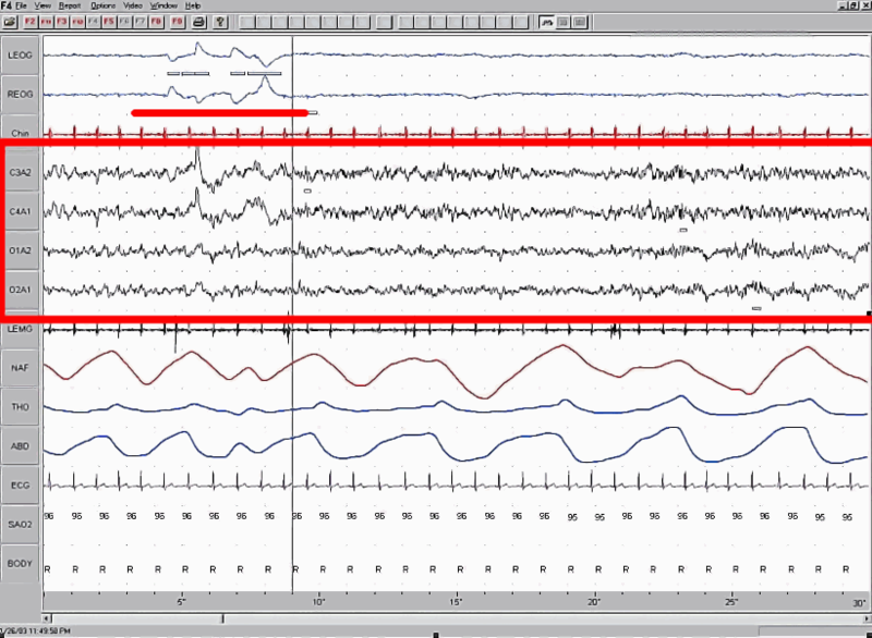 Fail:Sleep EEG REM.png