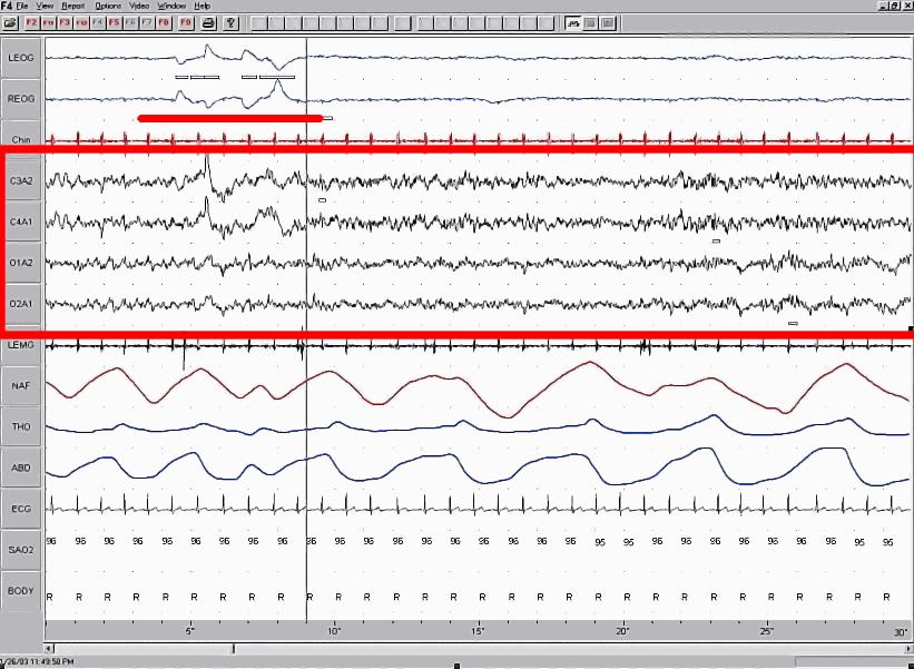 Sleep EEG REM