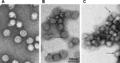 Tick-Borne Encephalitis Virus.png