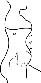 Toleration of the corset1057fig52 .png