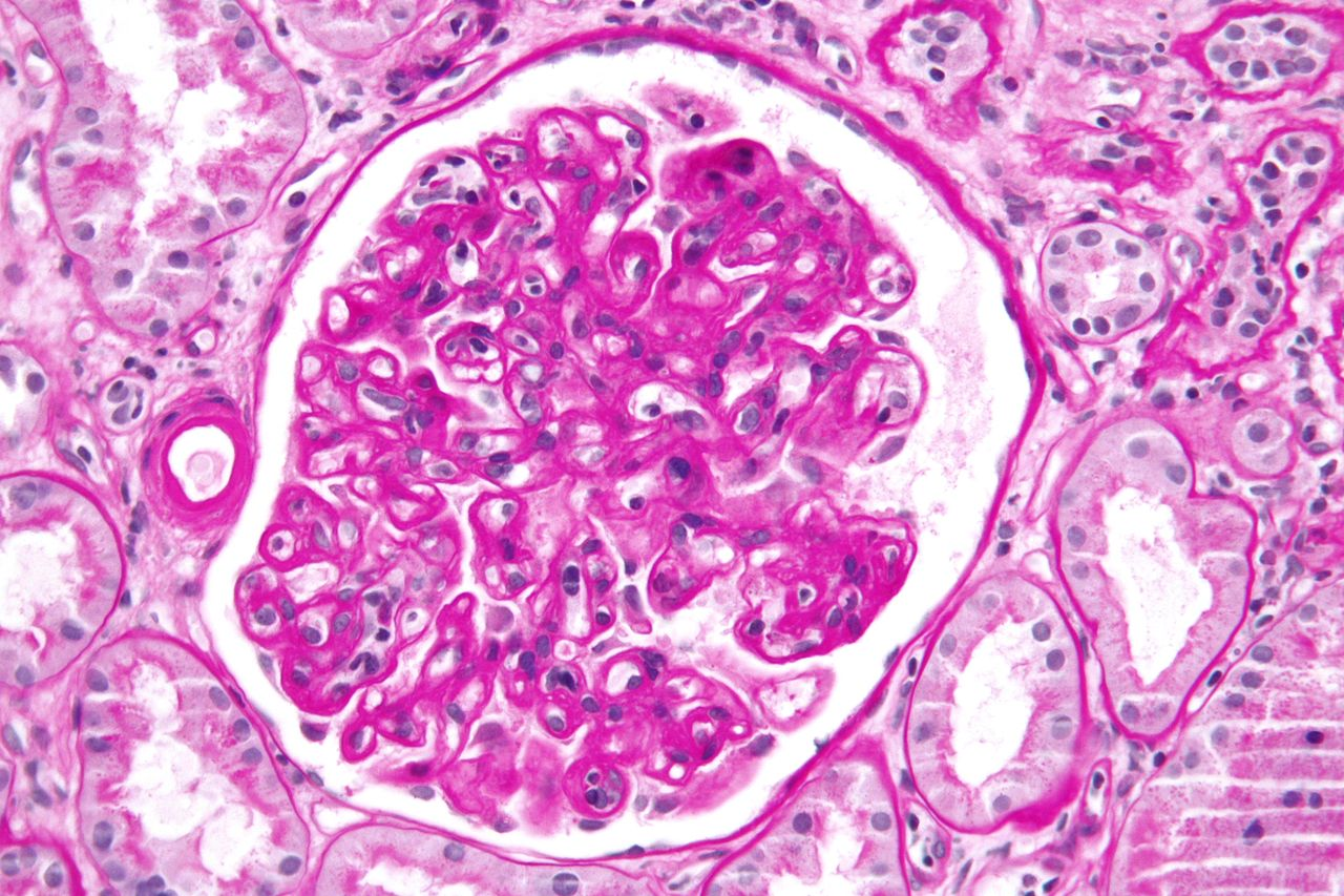 File Transplant Glomerulopathy Very High Mag Jpg