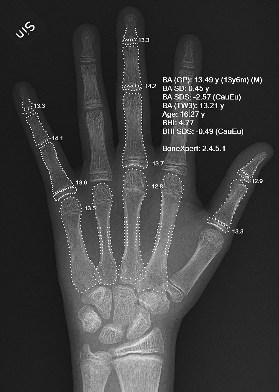 X-ray of a hand with automatic bone age calculation