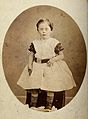 Young girl with Down's syndrome, sitting, wearing striped so Wellcome V0030051.jpg