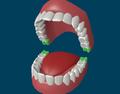 Зубы мудрости.png
